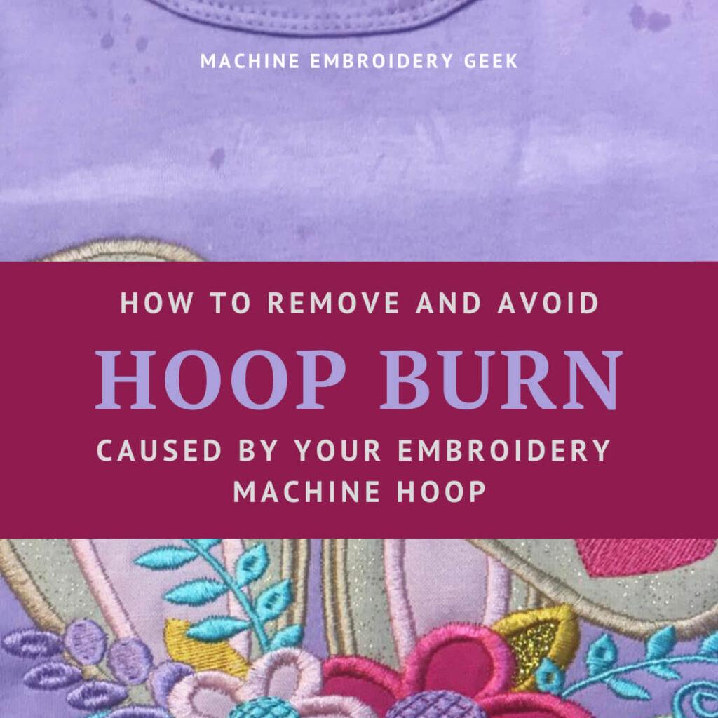 how to remove hoop burn